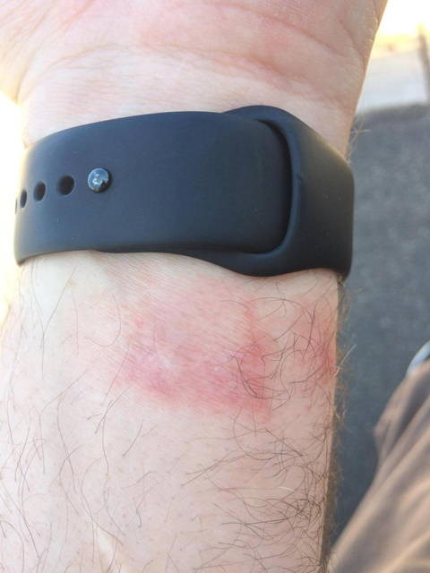 apple-watch-rash-480x640